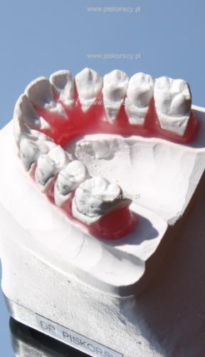 Ustawianie zębów – set up
